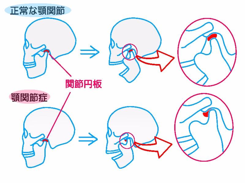 ストレスでも起こる顎関節症